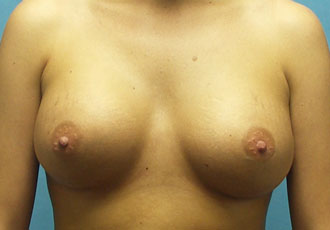 Salt Lake City Breast implants surgeon