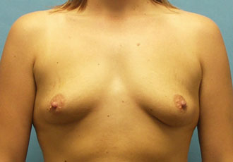 Breast implants Salt Lake City