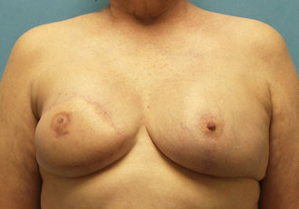Before after breast reconstruction surgery