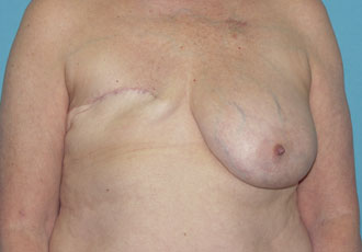 Breast reconstruction surgeon salt lake city