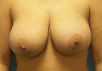 Breast reduction Salt Lake City