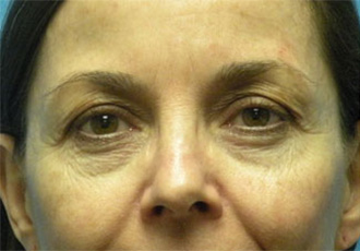Eyelid surgeon Salt Lake City